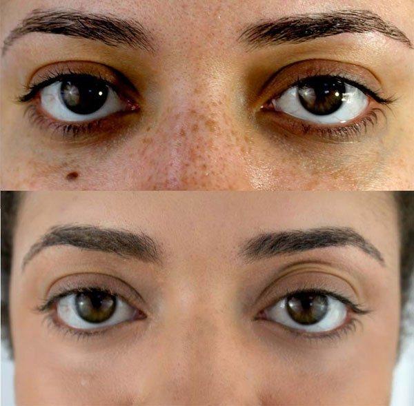 best dark under eye orange concealer