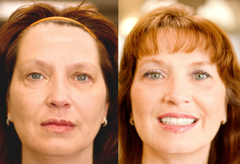 before and after firm up eye cream