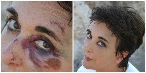 killer cover best bruise concealer