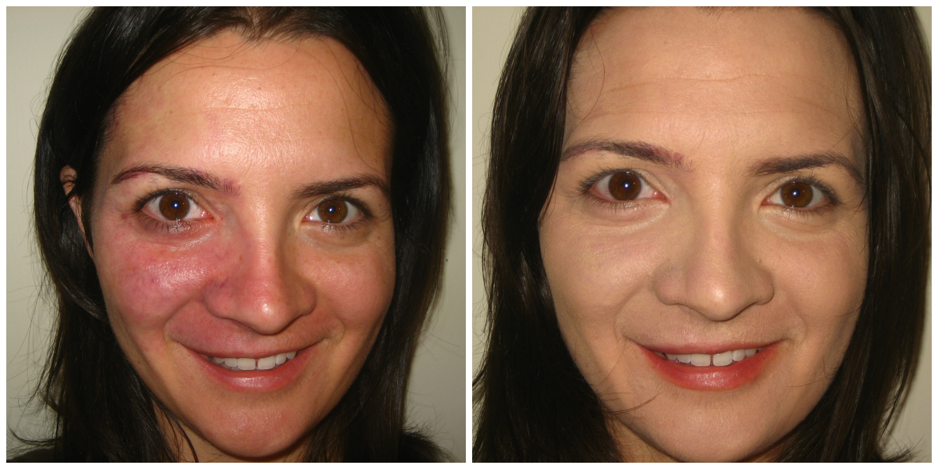 KATE ROSACEA BEFORE AND AFTER